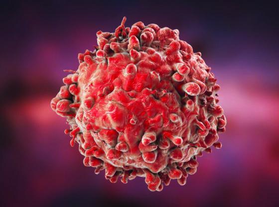 Leukemia white blood cell