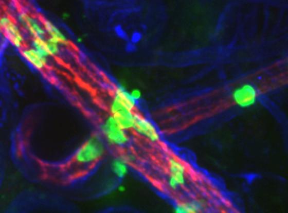 Muller leukocyte photo